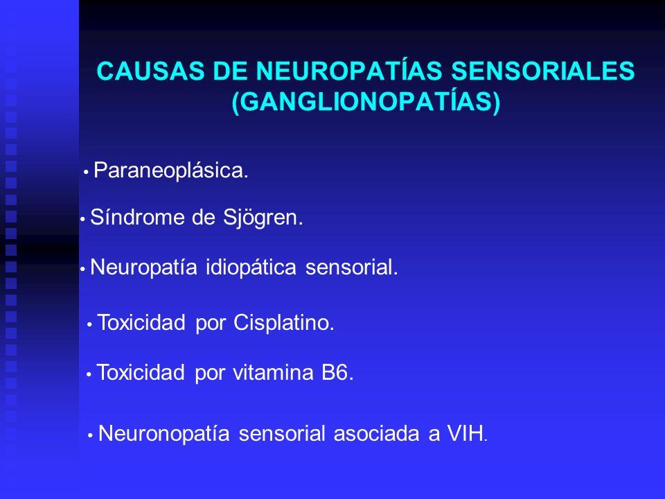 CAUSAS DE NEUROPATÍAS SENSORIALES (GANGLIONOPATÍAS) Paraneoplásica. Síndrome de Sjögren. Neuropatía idiopática sensorial. Toxicidad por Cisplatino. To