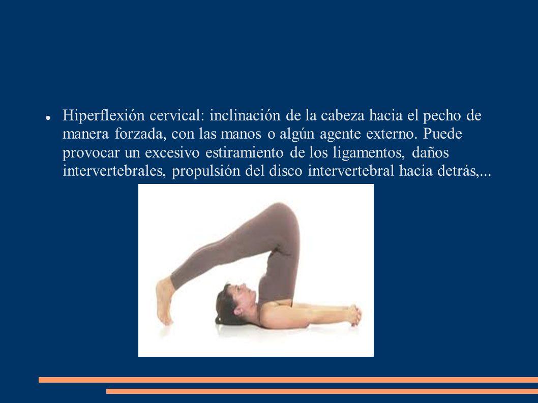 Hiperflexión cervical: inclinación de la cabeza hacia el pecho de manera forzada, con las manos o algún agente externo. Puede provocar un excesivo est