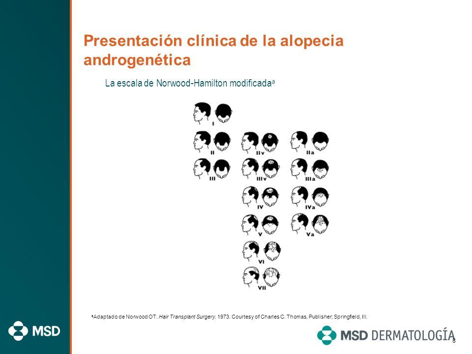 Características de la alopecia androgenética 1 Los pelos miniaturizados con diferentes longitudes y diámetros son característicos de la alopecia andro