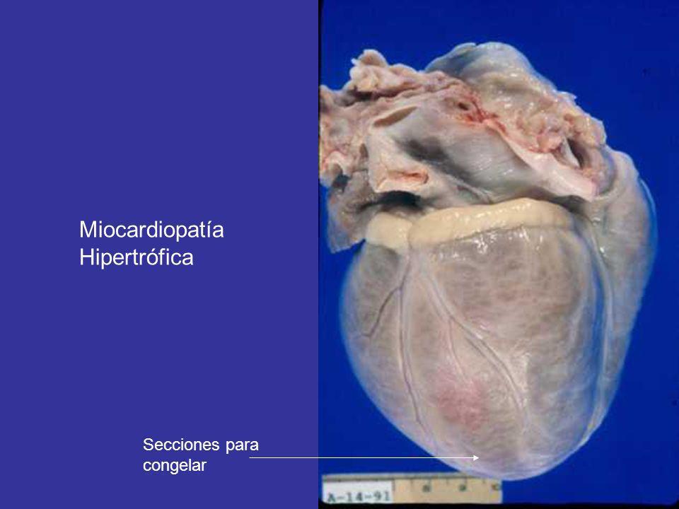 Metodología en el caso de autopsia de posible miocardiopatía (III) 7º.- una vez fijado, se efectúan cortes trasversales del corazón, comenzando desde el ápex hasta las válvulas, con un centímetro de grosor cada uno y se exponen orientados para su estudio macroscópico.