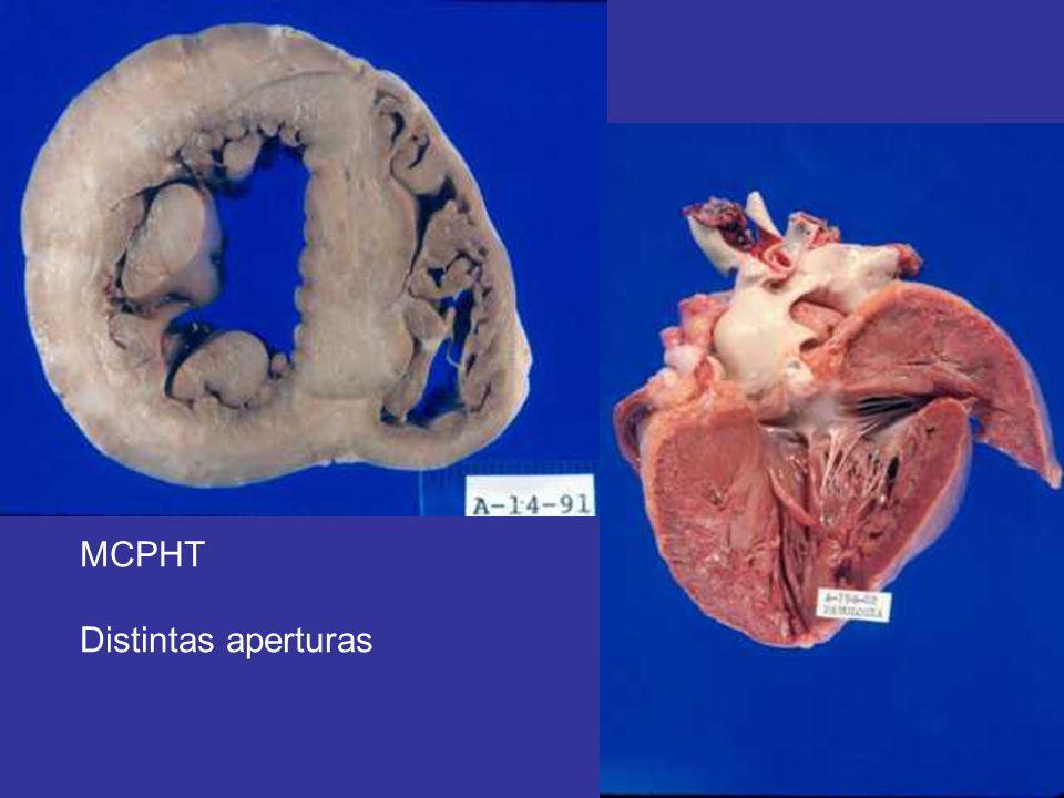 MCPHT Distintas aperturas