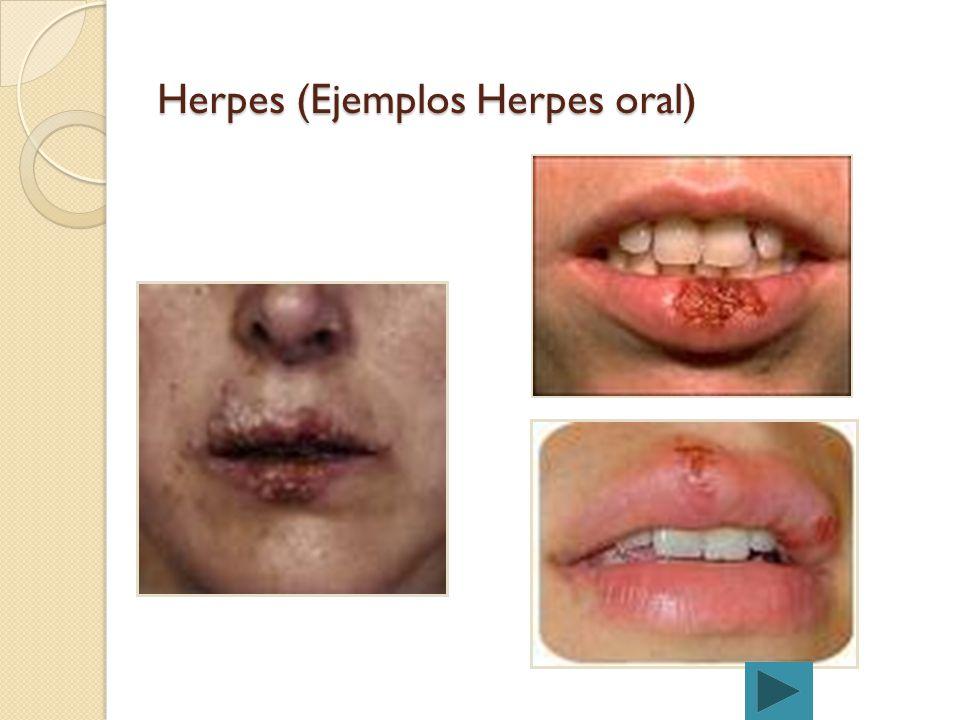 Herpes Dolor de cabeza Fiebre Nauseas Sensación de decaimiento