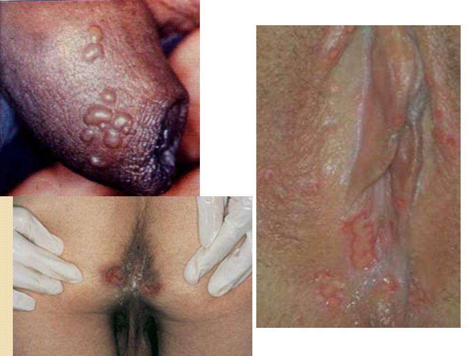 Herpes (Ejemplos Herpes genital) En el Hombre