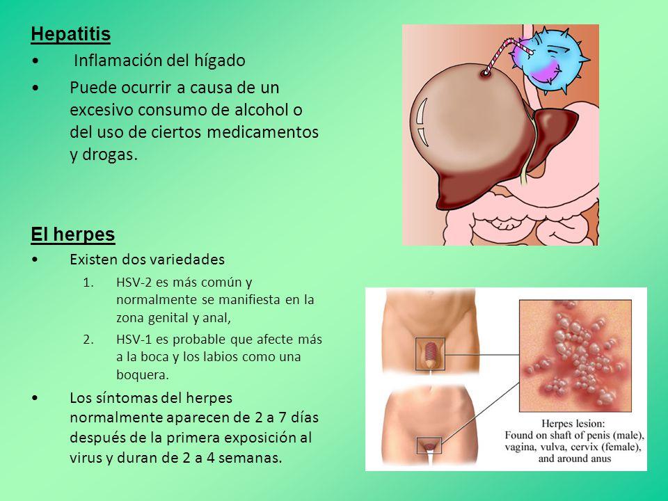 Hepatitis Inflamación del hígado Puede ocurrir a causa de un excesivo consumo de alcohol o del uso de ciertos medicamentos y drogas.