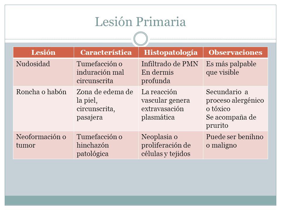Lesión Primaria LesiónCaracterísticaHistopatologíaObservaciones NudosidadTumefacción o induración mal circunscrita Infiltrado de PMN En dermis profund
