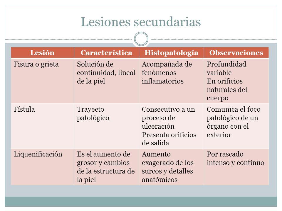 Lesiones secundarias LesiónCaracterísticaHistopatologíaObservaciones Fisura o grietaSolución de continuidad, lineal de la piel Acompañada de fenómenos