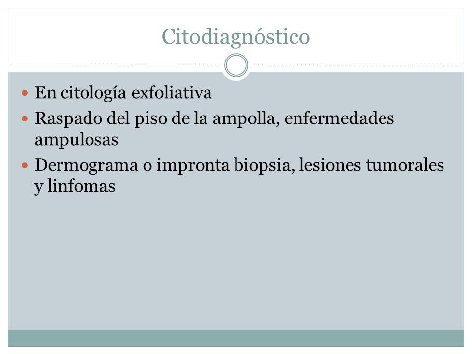Citodiagnóstico En citología exfoliativa Raspado del piso de la ampolla, enfermedades ampulosas Dermograma o impronta biopsia, lesiones tumorales y linfomas