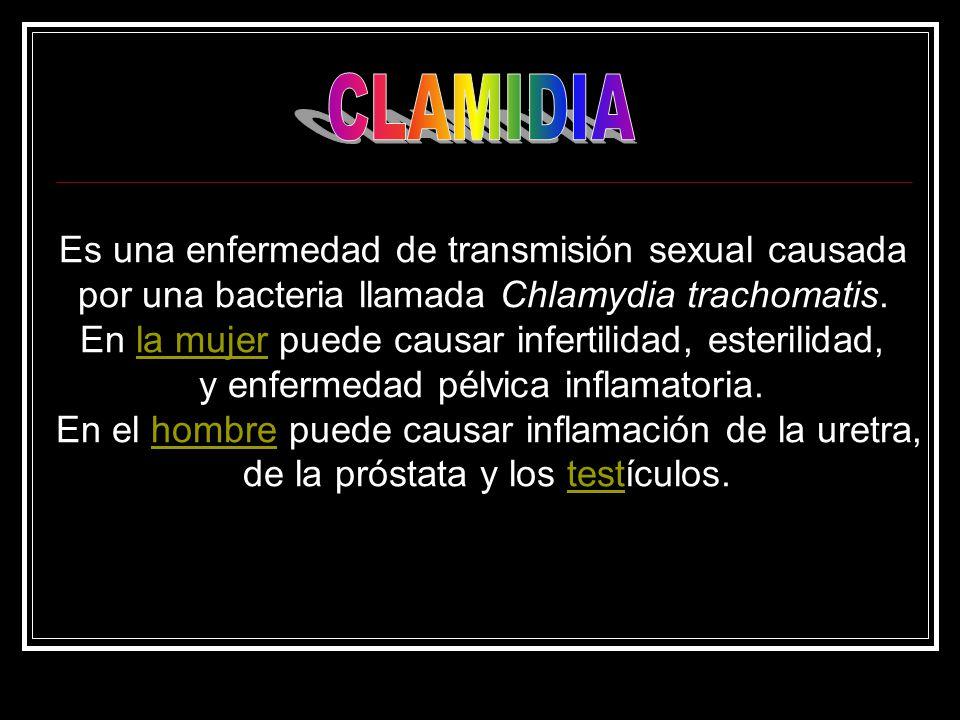 Es una enfermedad de transmisión sexual causada por una bacteria llamada Chlamydia trachomatis.