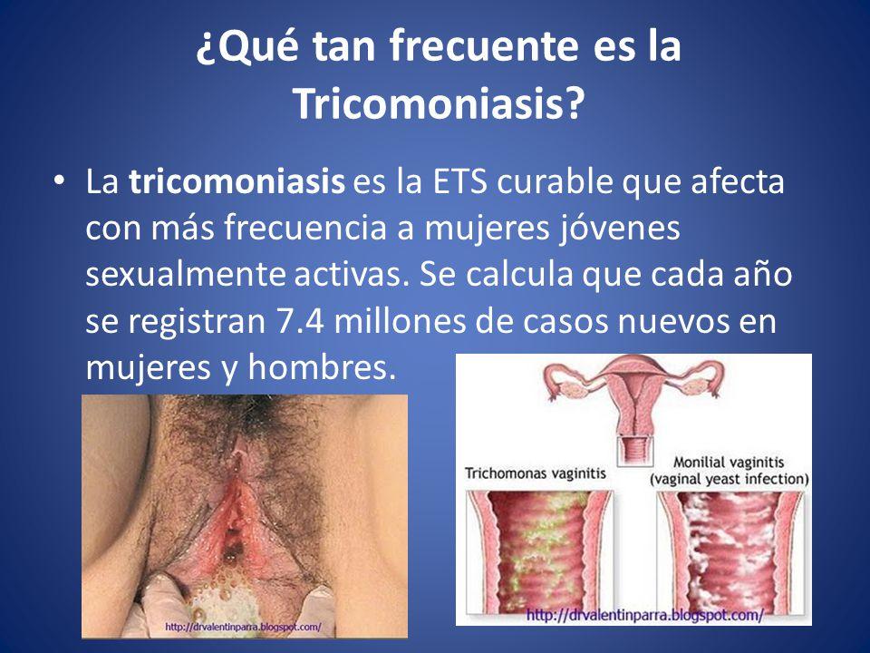 ¿Qué tan frecuente es la Tricomoniasis.
