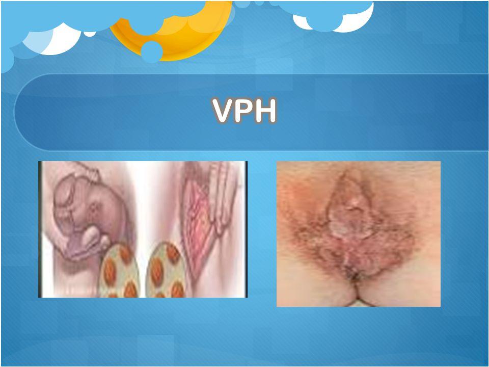 Los virus del papiloma humano son virus comunes que pueden causar verrugas. Existen más de 100 tipos de VPH. La mayoría son inofensivos, pero aproxima