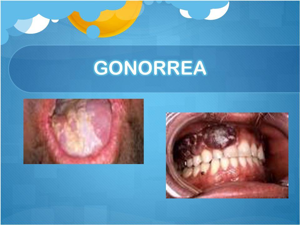 Es más común en los adultos jóvenes. La bacteria que causa la gonorrea puede infectar el tracto genital, la boca o el ano. La gonorrea puede causar do