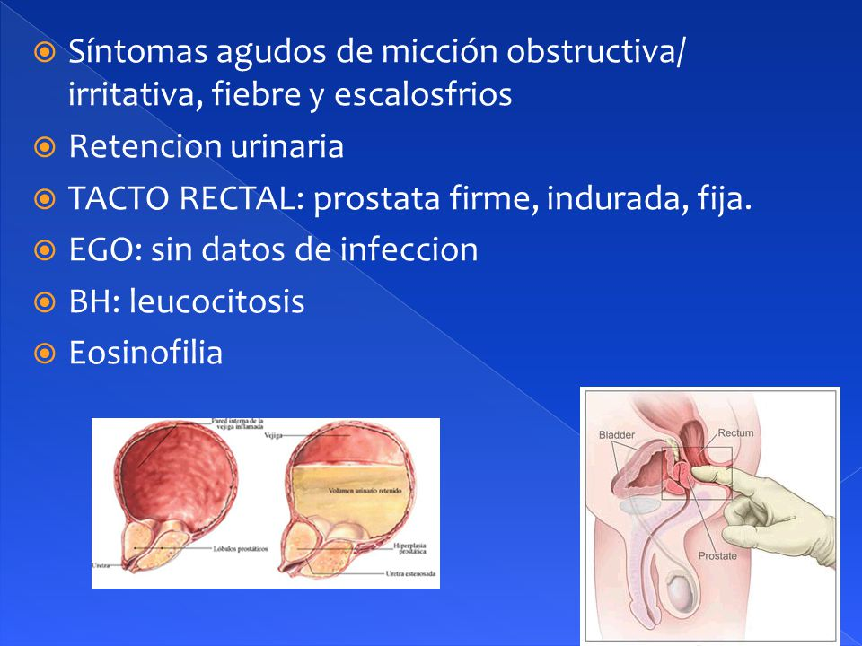 Síntomas agudos de micción obstructiva/ irritativa, fiebre y escalosfrios  Retencion urinaria  TACTO RECTAL: prostata firme, indurada, fija.