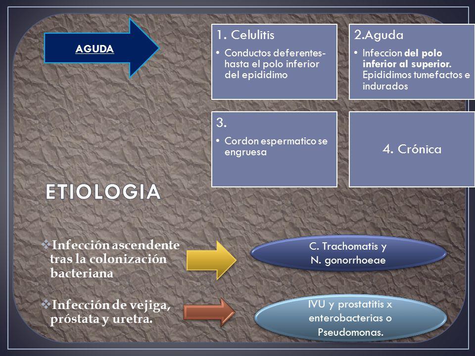  Infección ascendente tras la colonización bacteriana  Infección de vejiga, próstata y uretra.