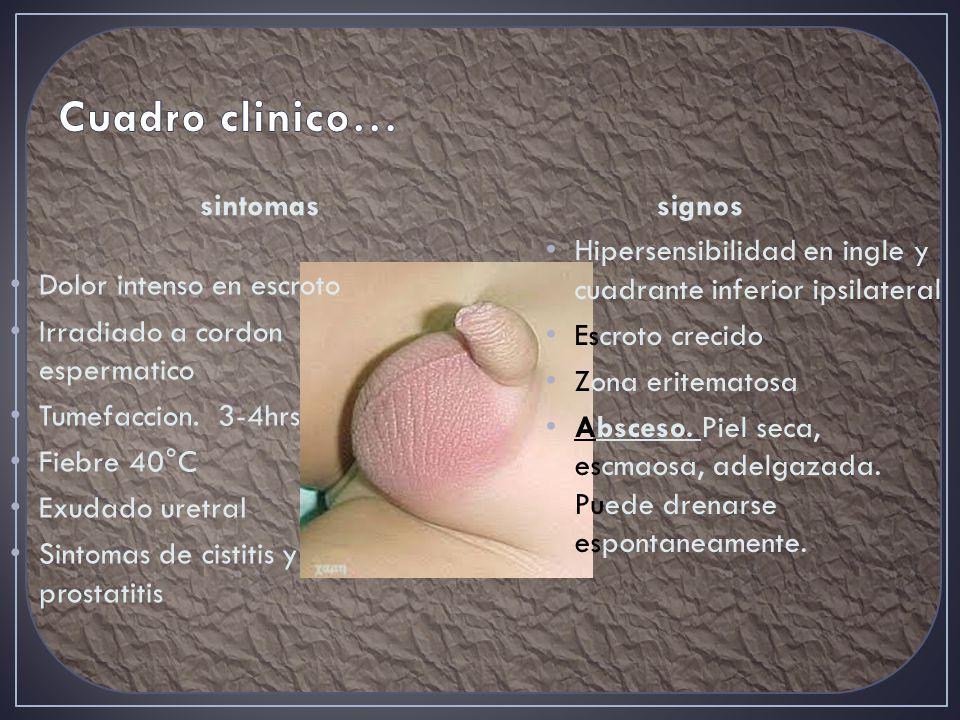 sintomas Dolor intenso en escroto Irradiado a cordon espermatico Tumefaccion.