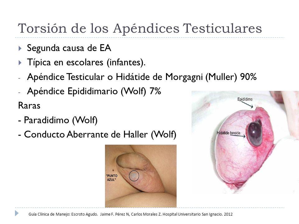 Torsión de los Apéndices Testiculares  Segunda causa de EA  Típica en escolares (infantes). - Apéndice Testicular o Hidátide de Morgagni (Muller) 90