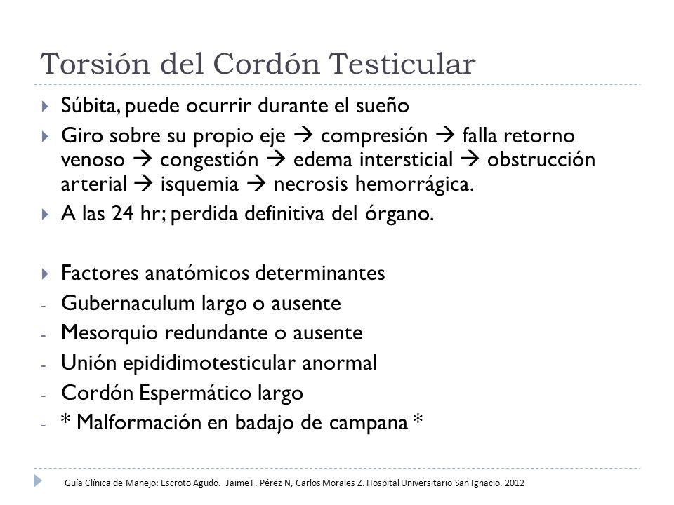Torsión del Cordón Testicular  Badajo de Campana; Implantación proximal de la túnica vaginal, defecto en el soporte posterior del testículo, libertad de movimiento rotacional del testículo.