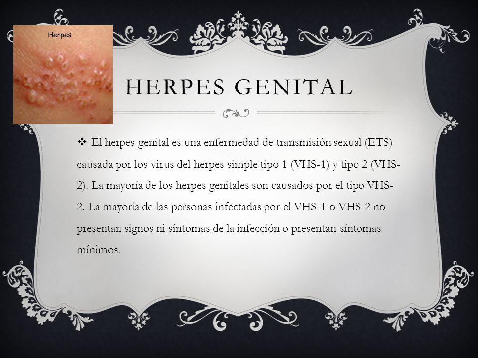 HERPES GENITAL  El herpes genital es una enfermedad de transmisión sexual (ETS) causada por los virus del herpes simple tipo 1 (VHS-1) y tipo 2 (VHS- 2).