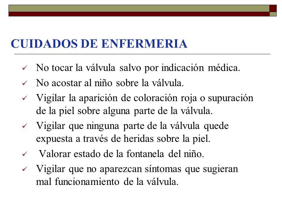 CUIDADOS DE ENFERMERIA No tocar la válvula salvo por indicación médica. No acostar al niño sobre la válvula. Vigilar la aparición de coloración roja o