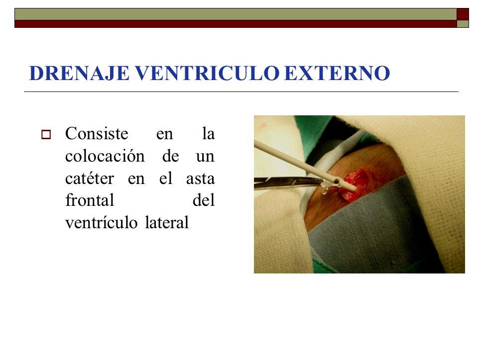 DRENAJE VENTRICULO EXTERNO  Consiste en la colocación de un catéter en el asta frontal del ventrículo lateral