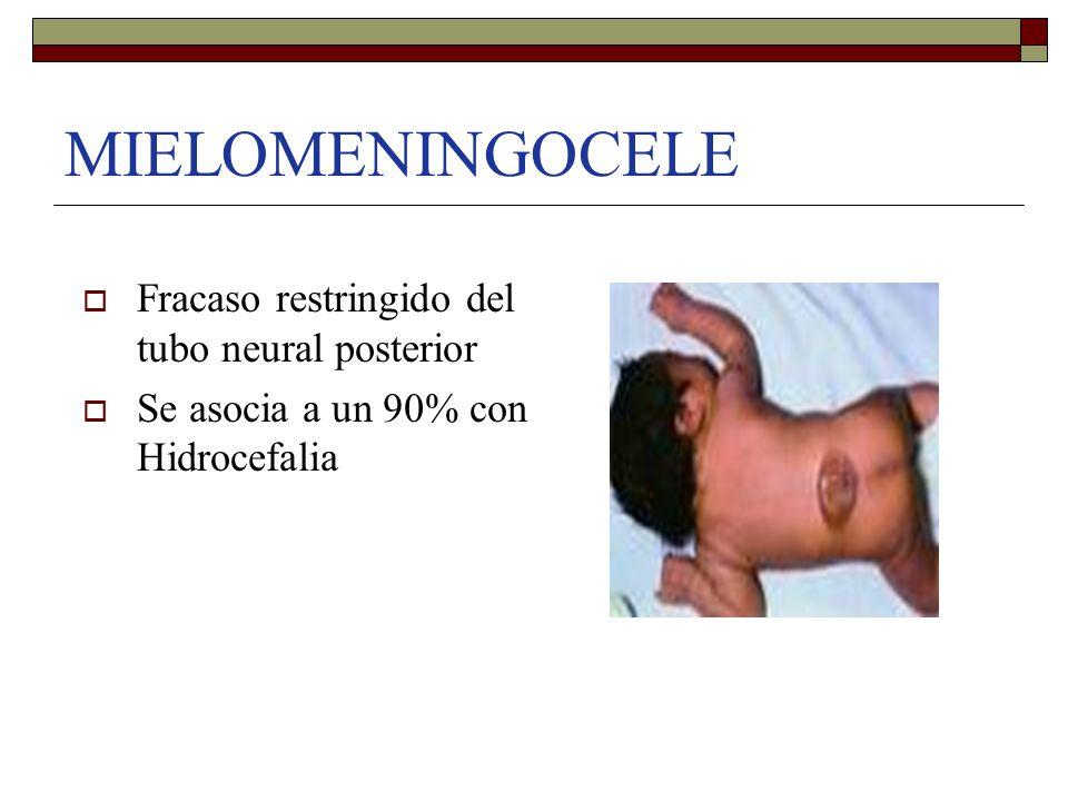  Fracaso restringido del tubo neural posterior  Se asocia a un 90% con Hidrocefalia