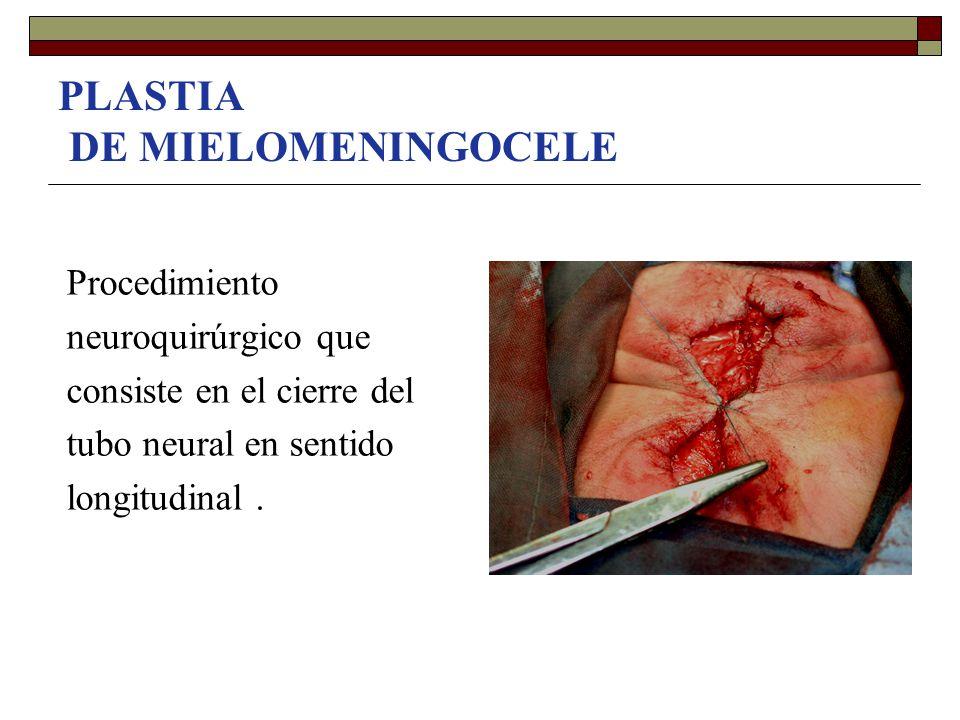 PLASTIA DE MIELOMENINGOCELE Procedimiento neuroquirúrgico que consiste en el cierre del tubo neural en sentido longitudinal.