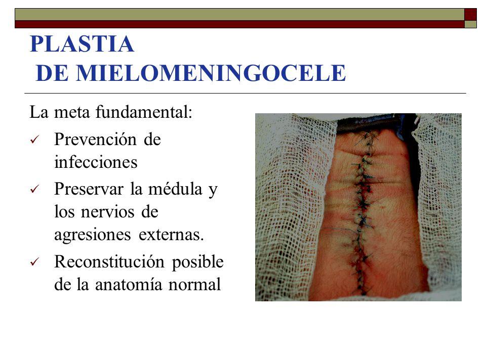 PLASTIA DE MIELOMENINGOCELE La meta fundamental: Prevención de infecciones Preservar la médula y los nervios de agresiones externas. Reconstitución po