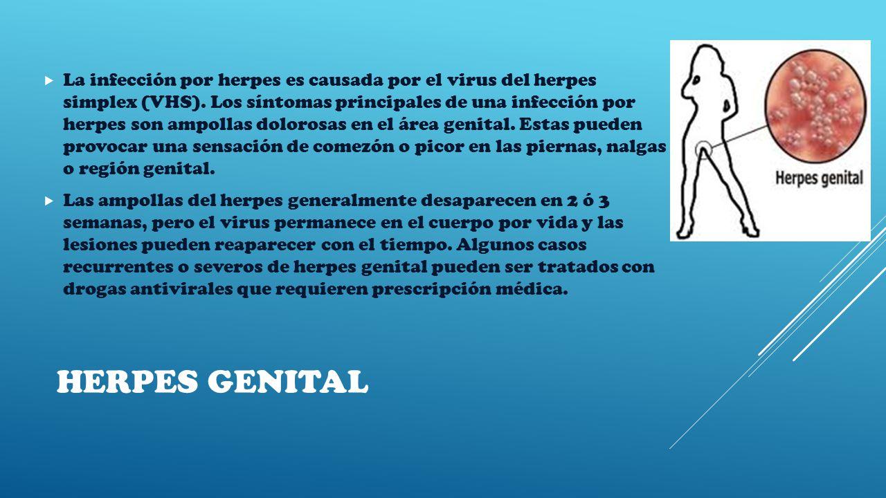 HERPES GENITAL  La infección por herpes es causada por el virus del herpes simplex (VHS).