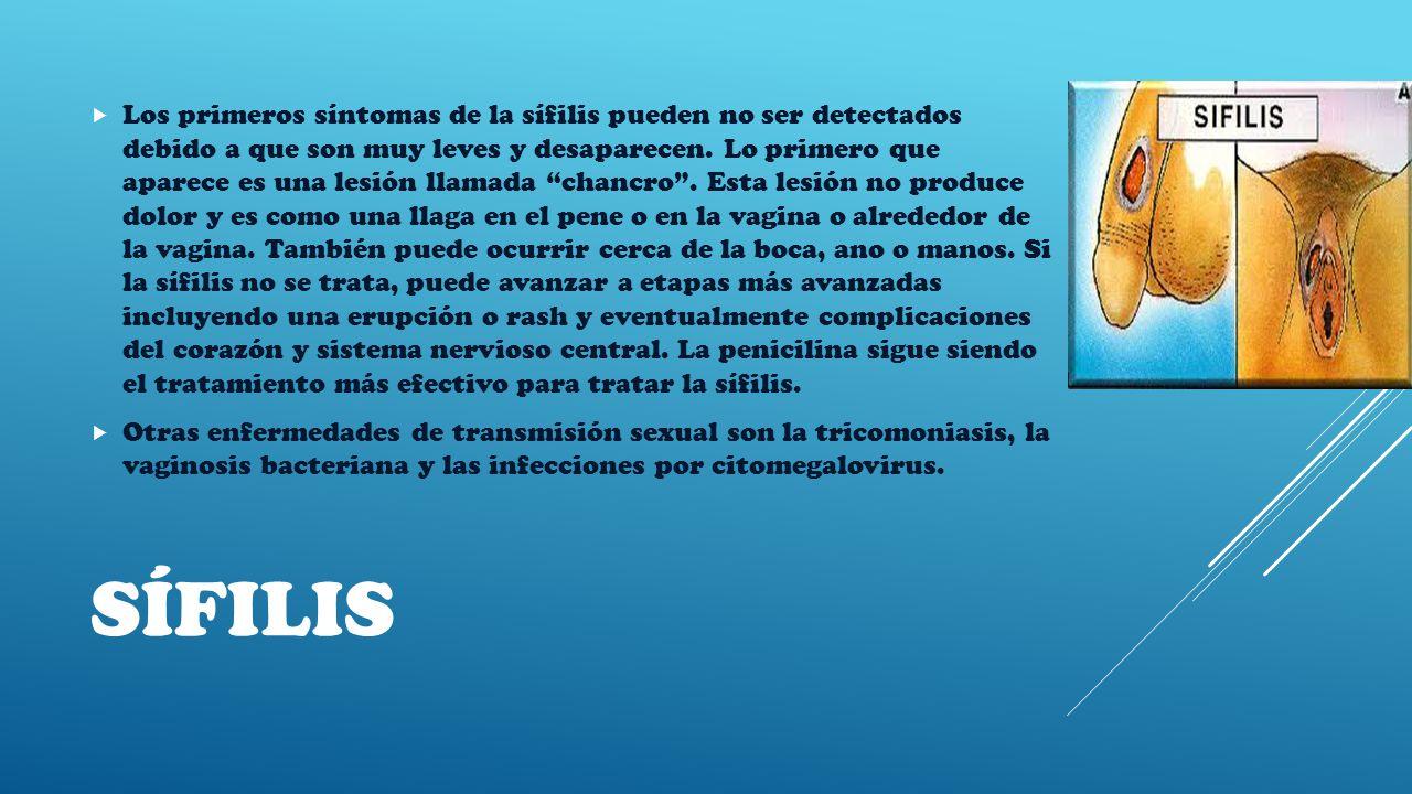 SÍFILIS  Los primeros síntomas de la sífilis pueden no ser detectados debido a que son muy leves y desaparecen.