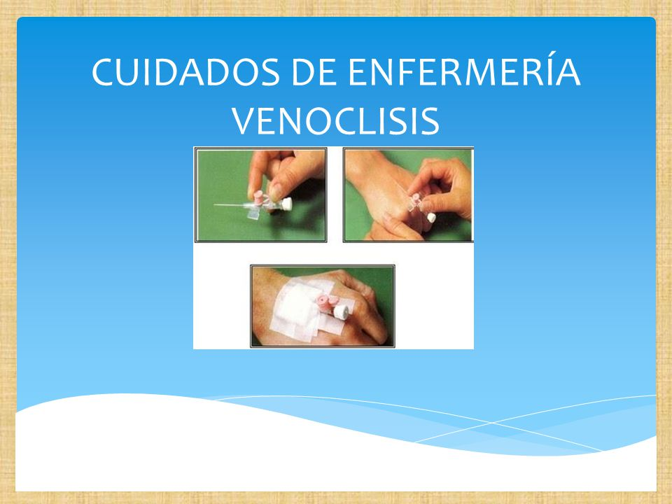 CUIDADOS DE ENFERMERÍA VENOCLISIS