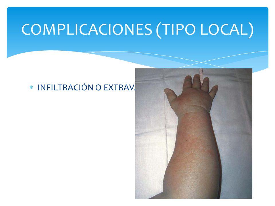  INFILTRACIÓN O EXTRAVASACIÓN COMPLICACIONES (TIPO LOCAL)
