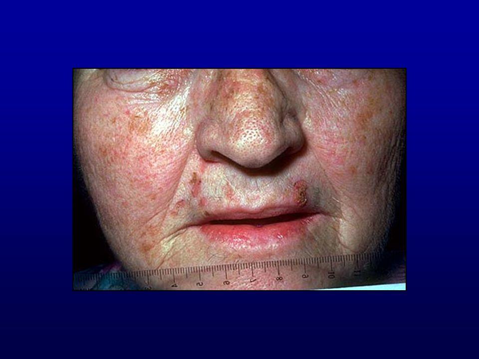 Queilitis actínica crónica Por exposición solar crónica LABIO INFERIOR Descamación y posterior placa escamosa evoluciona a Ca.Espinocelular Tratamiento: Criocirugía,5 FU, Cirugía, TFD