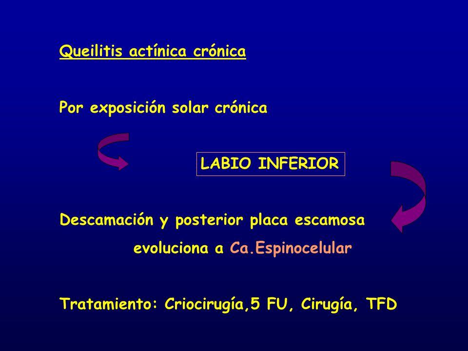 Queilitis actínica crónica Por exposición solar crónica LABIO INFERIOR Descamación y posterior placa escamosa evoluciona a Ca.Espinocelular Tratamient