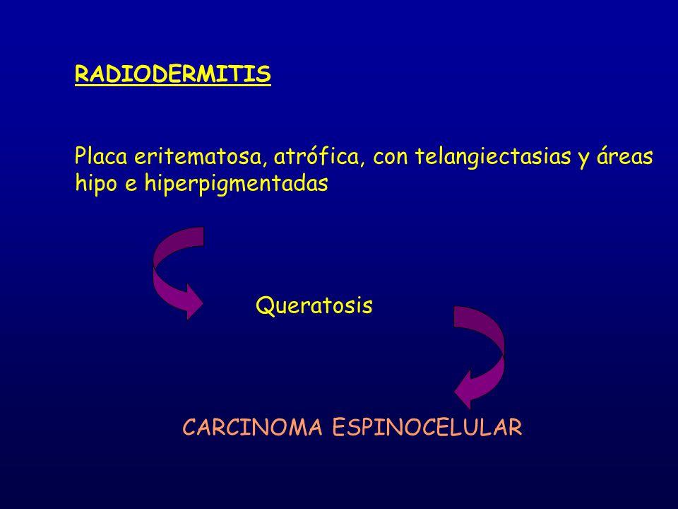 RADIODERMITIS Placa eritematosa, atrófica, con telangiectasias y áreas hipo e hiperpigmentadas Queratosis CARCINOMA ESPINOCELULAR