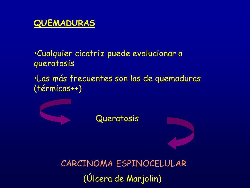 QUEMADURAS Cualquier cicatriz puede evolucionar a queratosis Las más frecuentes son las de quemaduras (térmicas++) Queratosis CARCINOMA ESPINOCELULAR