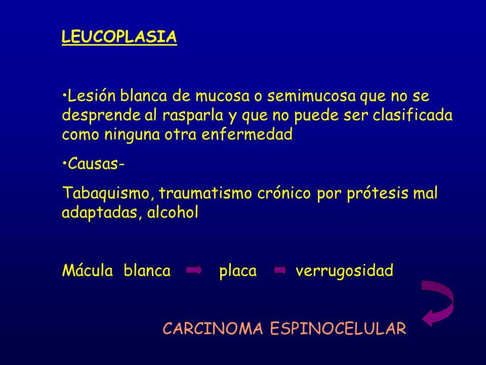 LEUCOPLASIA Lesión blanca de mucosa o semimucosa que no se desprende al rasparla y que no puede ser clasificada como ninguna otra enfermedad Causas- T