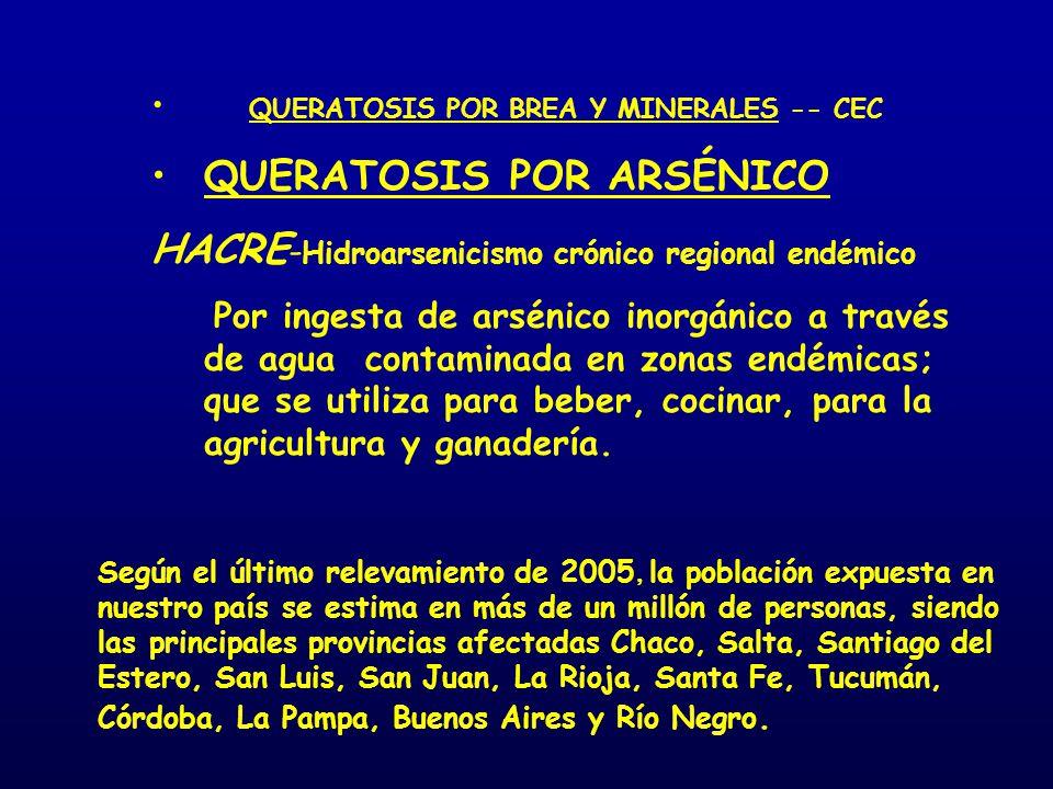 QUERATOSIS POR BREA Y MINERALES -- CEC QUERATOSIS POR ARSÉNICO HACRE - Hidroarsenicismo crónico regional endémico Por ingesta de arsénico inorgánico a