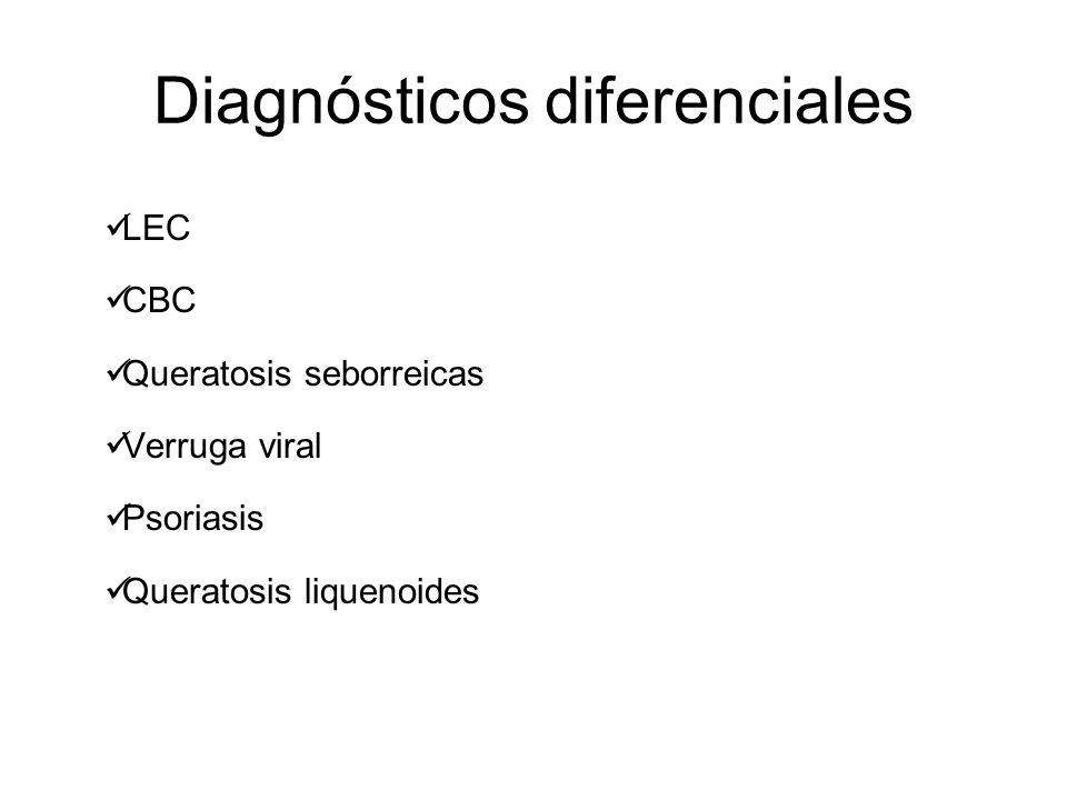 Diagnósticos diferenciales LEC CBC Queratosis seborreicas Verruga viral Psoriasis Queratosis liquenoides