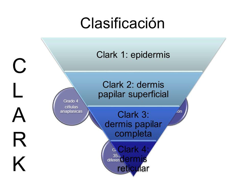 Clasificación Clasificación de Broder Grado 1: 75-100% diferenciación Grado 2: 50-75% de diferenciación Grado 3: 35-50% diferenciación Grado 4: célula