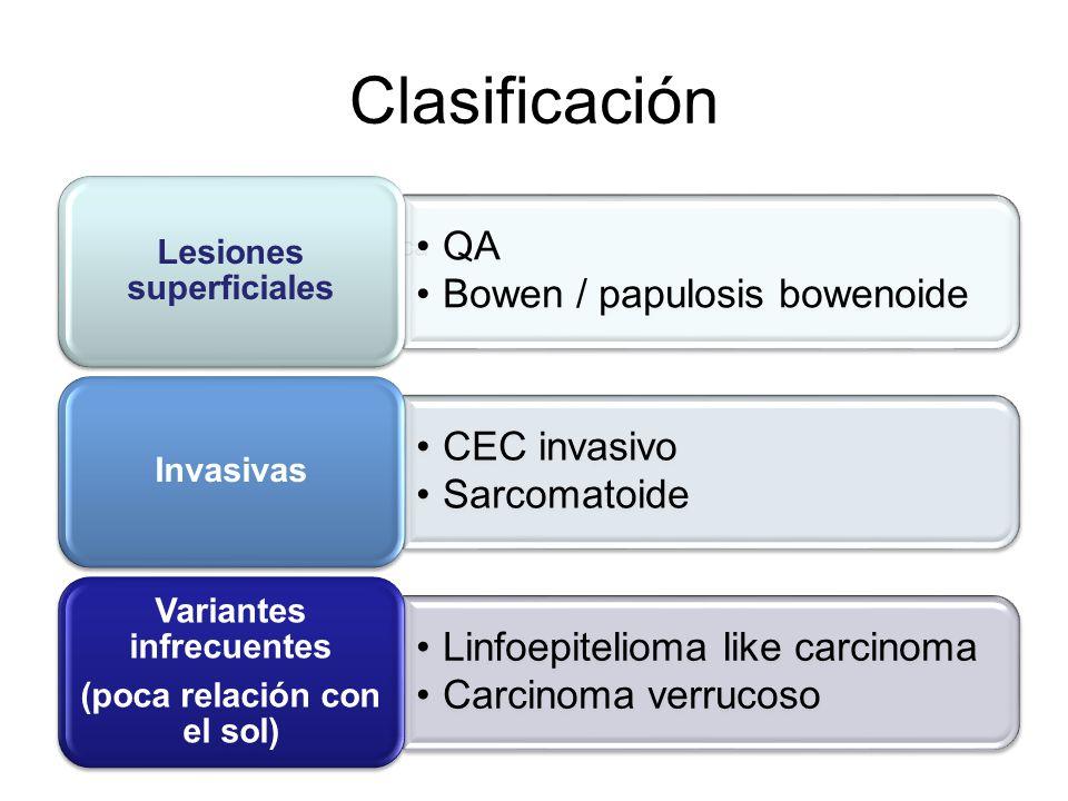 Clasificación clinico- patológica QA Bowen / papulosis bowenoide Lesiones superficiales CEC invasivo Sarcomatoide Invasivas Linfoepitelioma like carci