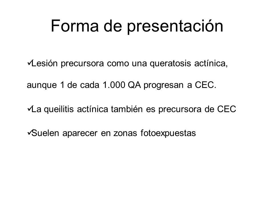 Forma de presentación Lesión precursora como una queratosis actínica, aunque 1 de cada 1.000 QA progresan a CEC. La queilitis actínica también es prec