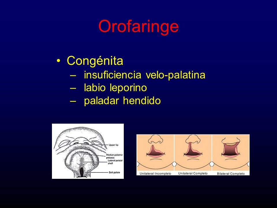 Congénita –insuficiencia velo-palatina –labio leporino –paladar hendido Orofaringe