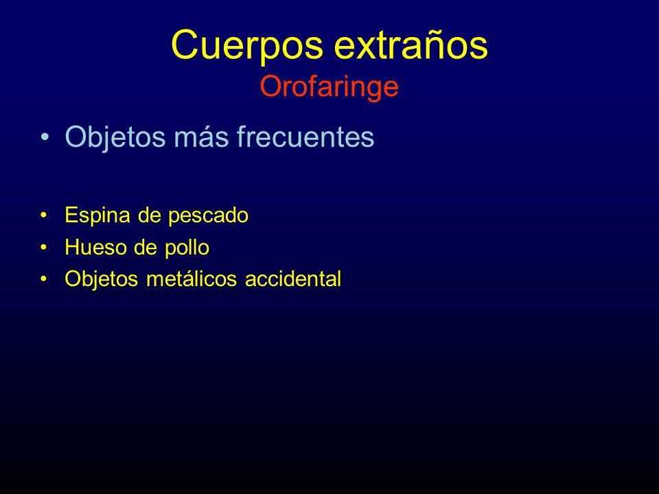 Cuerpos extraños Orofaringe Objetos más frecuentes Espina de pescado Hueso de pollo Objetos metálicos accidental