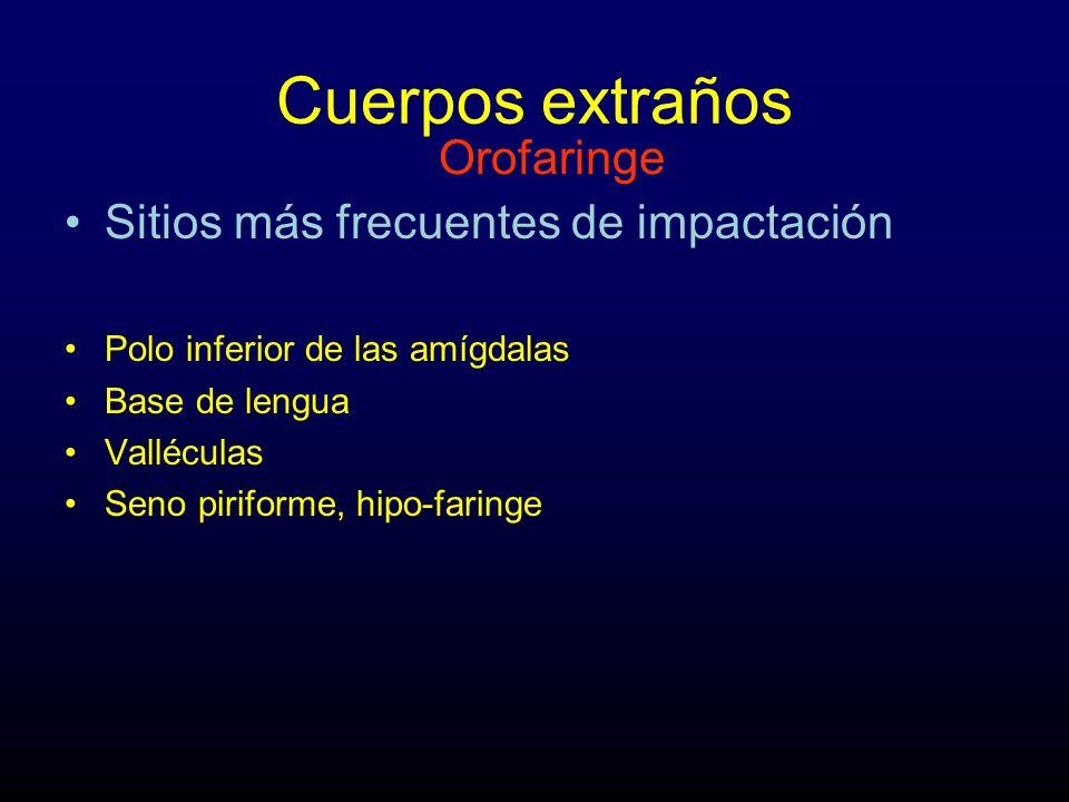 Cuerpos extraños Sitios más frecuentes de impactación Polo inferior de las amígdalas Base de lengua Valléculas Seno piriforme, hipo-faringe Orofaringe