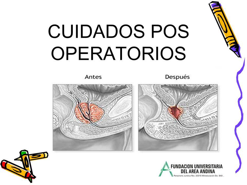 CUIDADOS POS OPERATORIOS