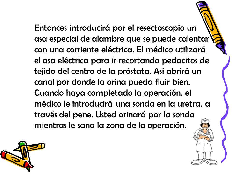 Entonces introducirá por el resectoscopio un asa especial de alambre que se puede calentar con una corriente eléctrica. El médico utilizará el asa elé