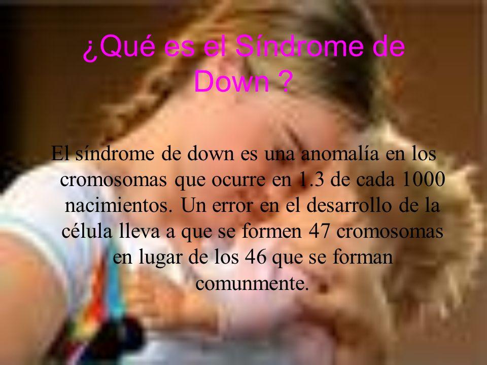 ¿Qué es el Síndrome de Down ? El síndrome de down es una anomalía en los cromosomas que ocurre en 1.3 de cada 1000 nacimientos. Un error en el desarro