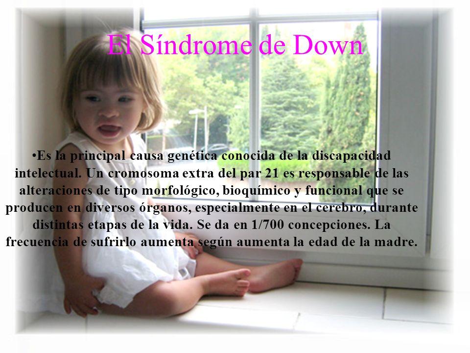 El Síndrome de Down Es la principal causa genética conocida de la discapacidad intelectual. Un cromosoma extra del par 21 es responsable de las altera