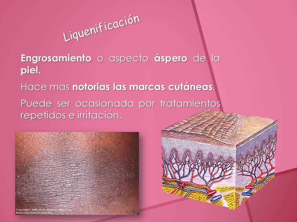 Liquenificación Engrosamiento o aspecto áspero de la piel.