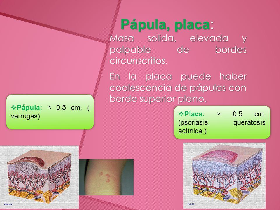 Lesiones vasculares cutáneas