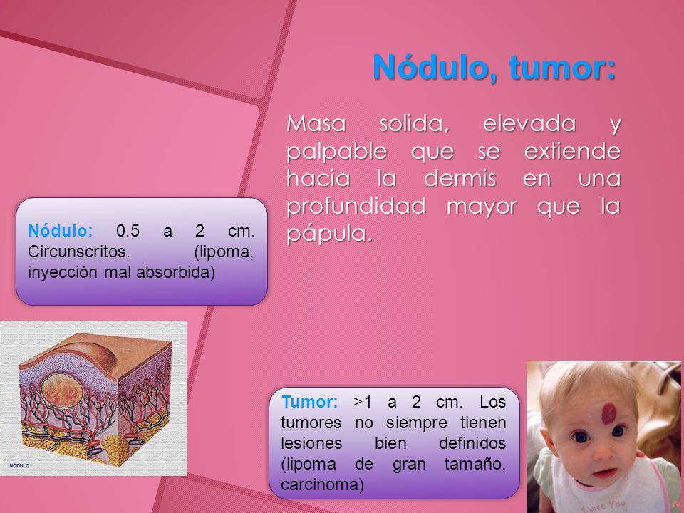 Nódulo, tumor: Masa solida, elevada y palpable que se extiende hacia la dermis en una profundidad mayor que la pápula.